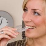 Bleaching – zu Hause oder beim Zahnarzt?